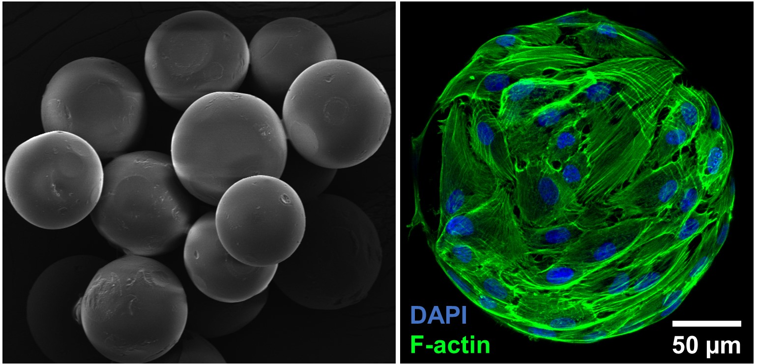 Osteogenic microtissues. Adult stem cells seeded on biomaterial micro constructs and differentiated in to bone cells.